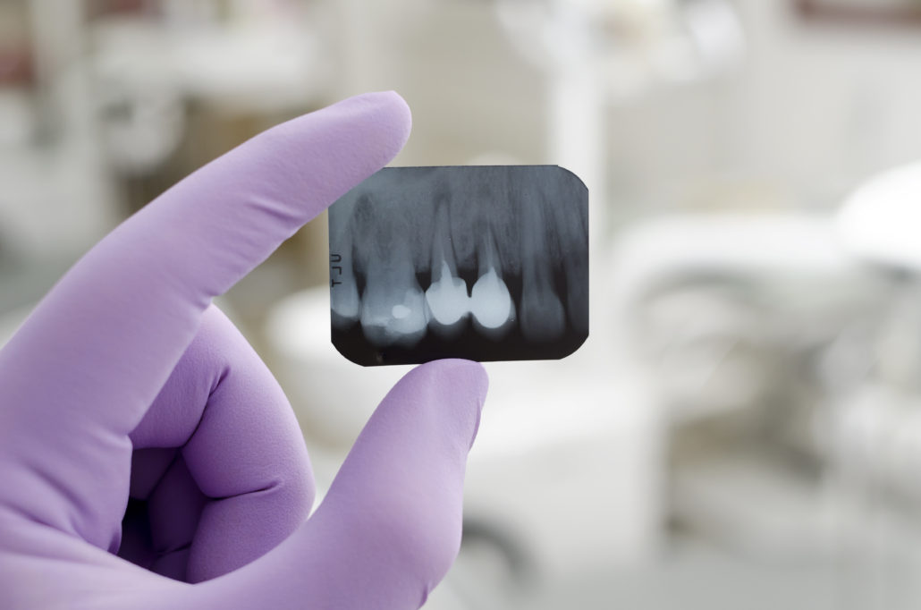 Doctor holding and looking at dental x-ray